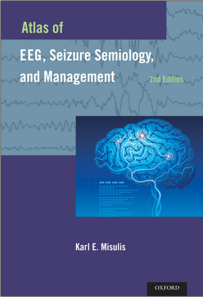 Atlas of EEG, Seizure Semiology, and Management 2nd Edition