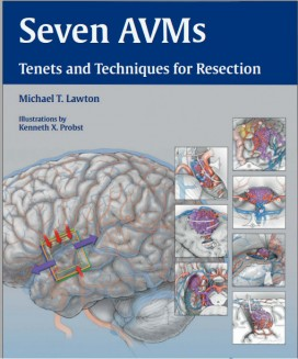 Seven AVMs: Tenets and Techniques for Resection 1st Edition