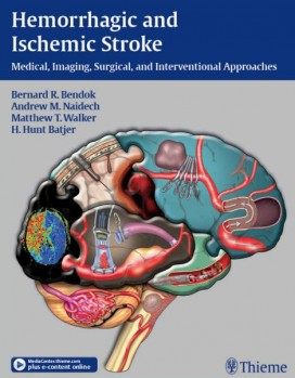 Hemorrhagic and Ischemic Stroke: Medical, Imaging, Surgical and Interventional Approaches 1st Edition