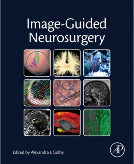 Image-Guided Neurosurgery 1st Edition