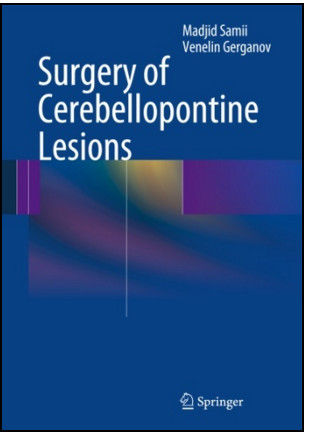 Surgery of Cerebellopontine Lesions