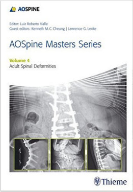 AOSpine Masters Series, Volume 4: Adult Spinal Deformities 1st Edition