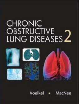 Chronic Obstructive Lung Disease 2nd Edition