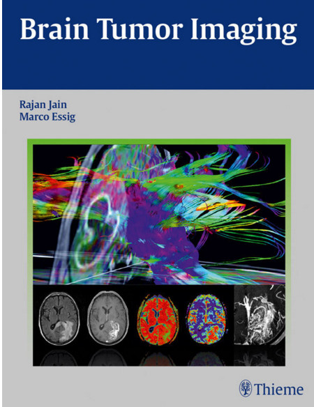 Brain Tumor Imaging 1st Edition