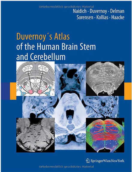Duvernoy's Atlas of the Human Brain Stem and Cerebellum: High-Field MRI, Surface Anatomy, Internal Structure, Vascularization and 3 D Sectional Anatomy 1st Edition