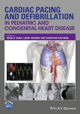 Cardiac Pacing and Defibrillation in Pediatric and Congenital Heart Disease 1st Edition PDF