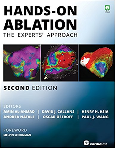 Hands-On Ablation: The Experts' Approach, 2nd Edition 2nd Edition PDF