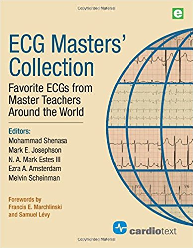 ECG Masters Collection: Favorite ECGs from Master Teachers Around the World 1st Edition PDF