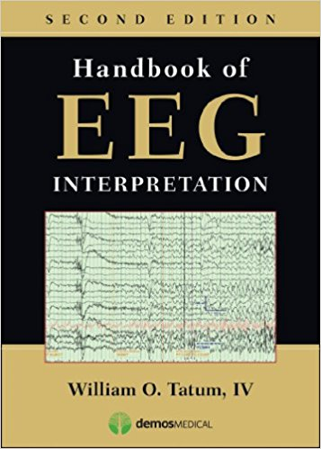 Handbook of EEG Interpretation, Second Edition 2nd Edition PDF