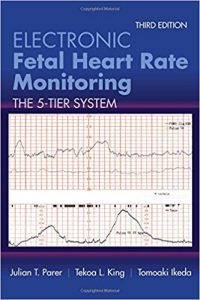 Electronic Fetal Heart Rate Monitoring The 5-Tier System 3rd Edition PDF