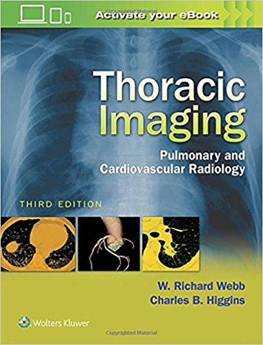Thoracic Imaging: Pulmonary and Cardiovascular Radiology Third Edition by W. Richard Webb (Author),‎ Charles B. Higgins (Author)