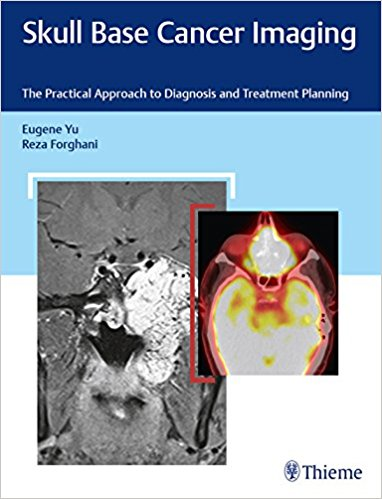 Skull Base Cancer Imaging: The Practical Approach to Diagnosis and Treatment Planning 1st Edition PDF