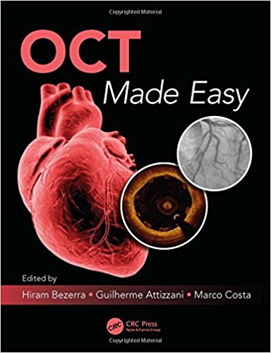 OCT Made Easy 1st Edition PDF