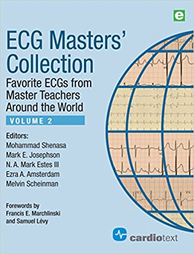 ECG Masters' Collection, Volume 2: Favorite ECGs from Master Teachers Around the World PDF ORIGINAL