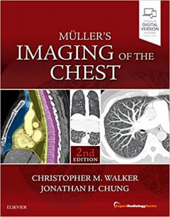 Muller's Imaging of the Chest: Expert Radiology Series 2nd Edition PDF