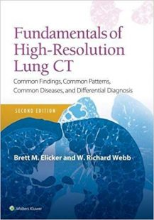 Fundamentals of High-Resolution Lung CT: Common Findings, Common Patterns, Common Diseases and Differential Diagnosis 2nd Edition PDF