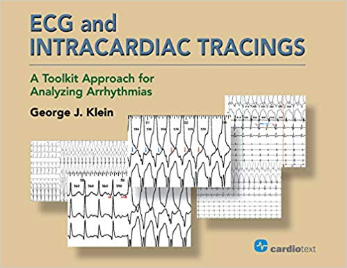 ECG and Intracardiac Tracings: A Toolkit Approach for Analyzing Arrhythmias, 2018 PDF