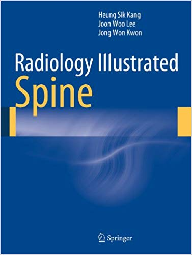Radiology Illustrated: Spine 2014 Edition PDF