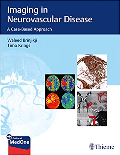 Imaging in Neurovascular Disease: A Case-Based Approach 1st Edition PDF