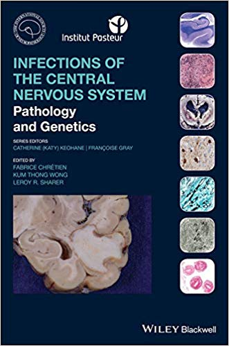 Infections of the Central Nervous System: Pathology and Genetics (International Society of Neuropathology Series) 1st Edition PDF