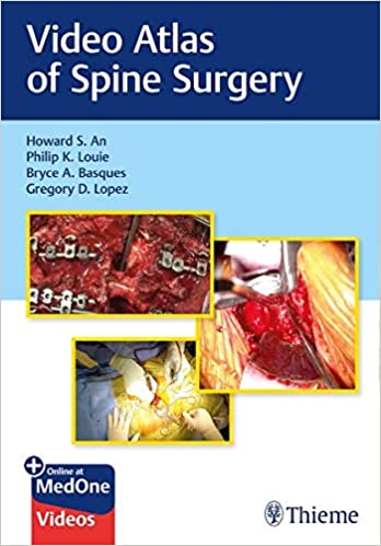 Video Atlas of Spine Surgery 1st Edition PDF & VIDEO