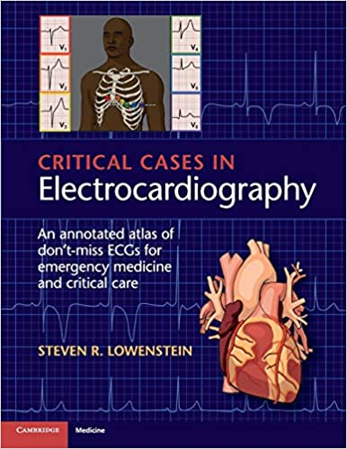 Critical Cases in Electrocardiography: An Annotated Atlas of Don't-Miss ECGs for Emergency Medicine and Critical Care 1st Edition PDF